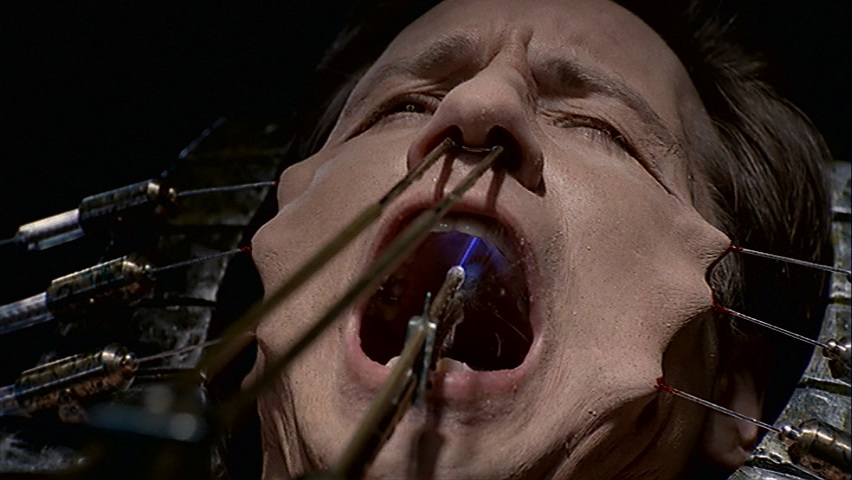 Mulder soft palate is drilled